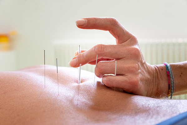 Dry-Needling-1648.png